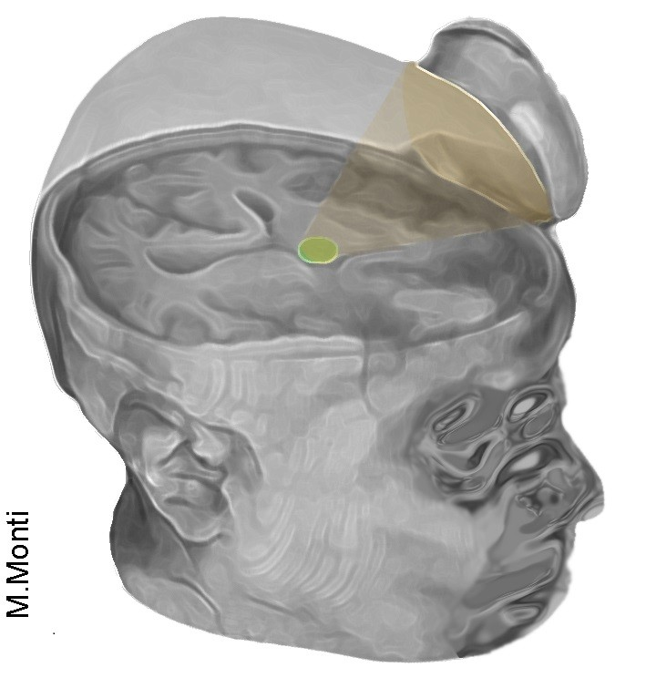 Scientists Use Ultrasound to Jump Start Man's Brain