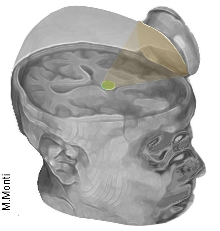 Scientists Use Ultrasound to Jump Start Man's Brain